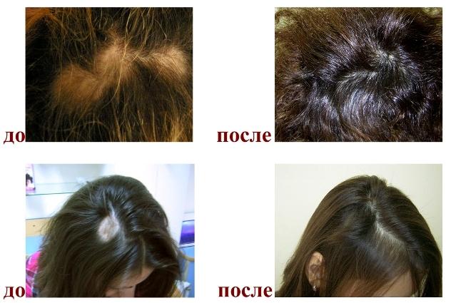 Лечение волос отзывы фото до и после